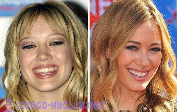 10 celebrities with the most expensive smiles