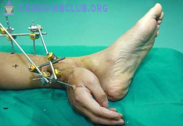 Chinese worker spent a month with a hand growing from his feet